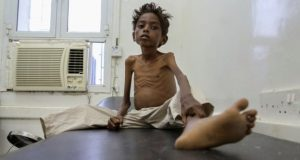 Five-year-old Mohannad Ali sits in hospital in Yemen in December. His younger cousin - aged just two - died of hunger
